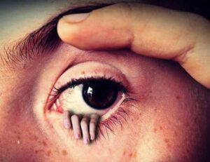 kantung mata / mata panda